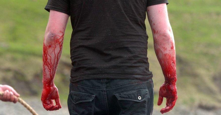 Vyras kruvinomis rankomis