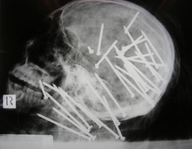 Kaukolės rentgeno nuotrauka