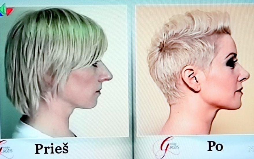 Rosita Paulauskaitė prieš ir po operacijos