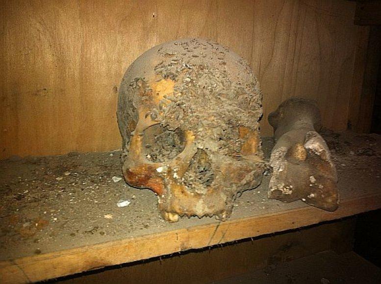 XVIII a. kriptoje palaidoto vilniečio kaukolė.