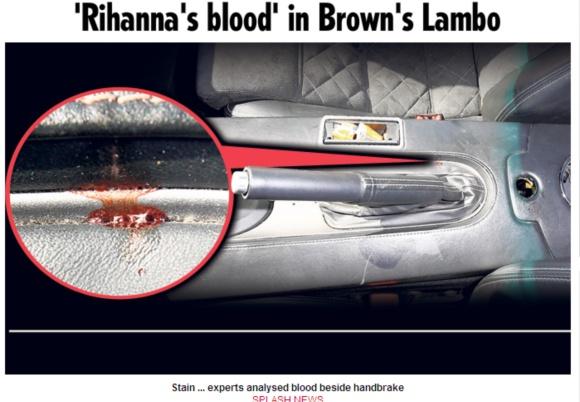 Rihanos kraujas automobilyje Lamborghini