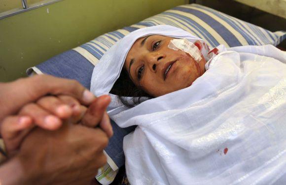 Sužeista Pakistano moteris