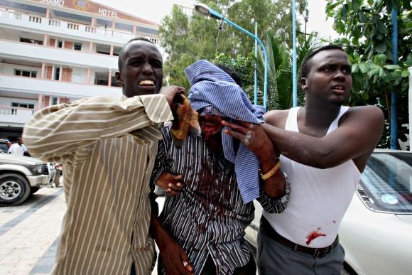 Iš sprogimo vietos evakuojami sužeistieji.