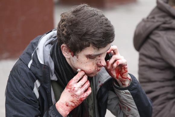 Per sprogimą sužeistas metro keleivis bando susisiekti su artimaisiais.