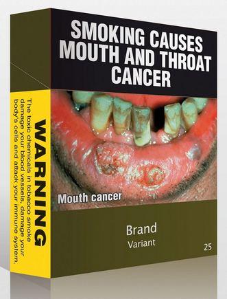 """AFP/""""Scanpix"""" nuotr./Australijoje pardavinėjami cigarečių pakeliai su perspėjimu """"Rūkymas sukelia burnos ir gerklės vėžį"""""""