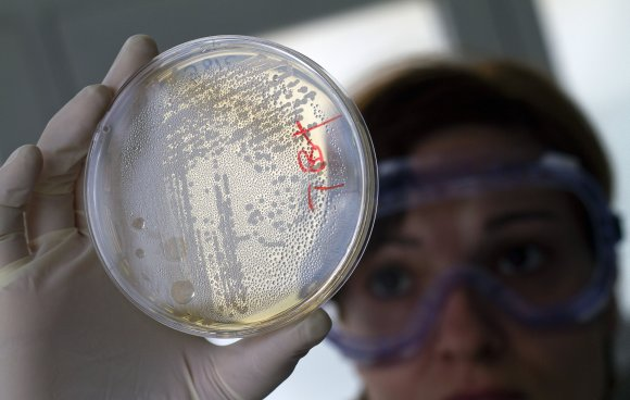 E.coli bakterijos