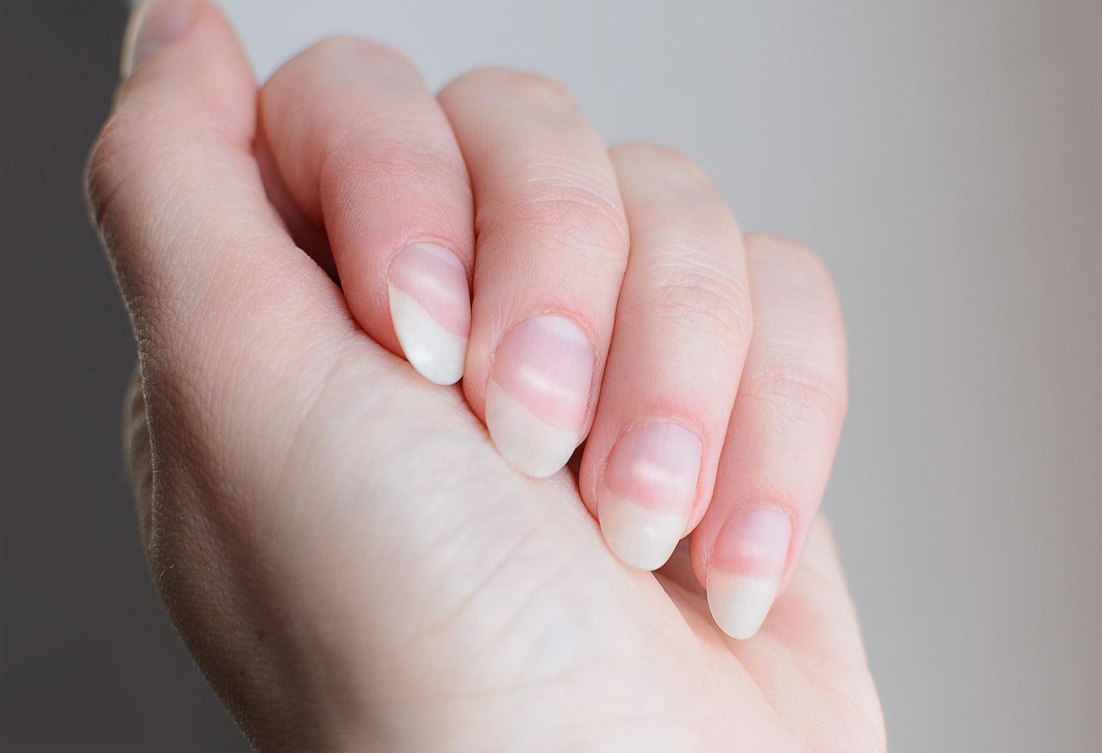 svorio netekimas baltos dėmės ant nagų
