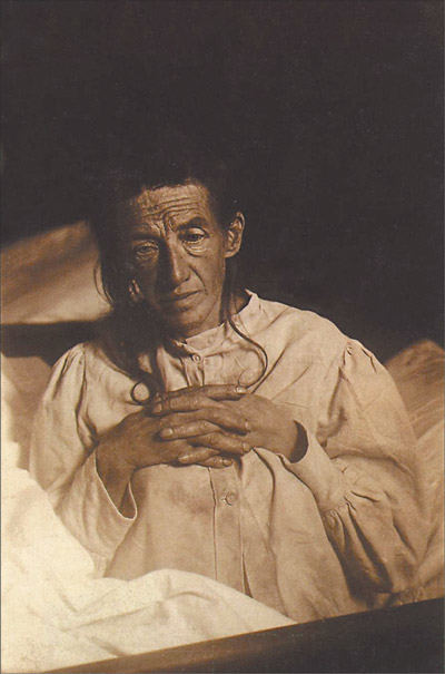"""""""Aš save pamečiau"""": Auguste Deter - pirmasis žmogus, kuriam buvo diagnozuota Alzheimerio liga"""