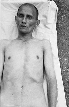JAV Holokausto memorialinio muziejaus nuotr./Romas, nukentėjęs nuo nacių medicininių eksperimentų