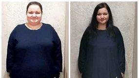"""""""Rita, būk, kuo nori būti"""": plastinės operacijos metu moteris neteko 10 kg (I dalis)"""