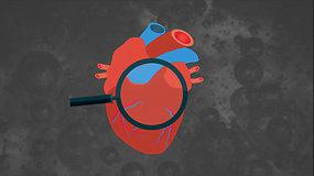 15min paaiškina: kaip atpažinti infarktą?
