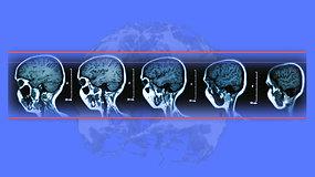 Alzheimerio liga: kas ji ir ką apie ją žinome?