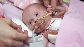 Stebuklas: su širdele išorėje gimusi mergaitė – pirmoji išgyvenusi Didžiojoje Britanijoje