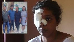 Kruvinas atakas Šri Lankoje išgyvenę artimieji neranda ramybės: norėčiau būti miręs su jais