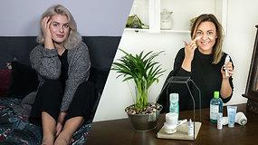 Rūpinamės veido oda: ką svarbu žinoti apie sausą ir mišrią odos tipus?