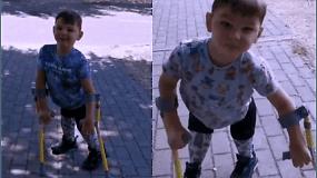 Kojų netekęs penkiametis pasiryžo nueiti 10 km dėl kilnaus tikslo – surinkti pinigų jį išgelbėjusiai ligoninei
