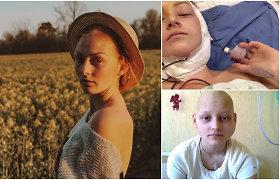 """Dėl žandikaulio vėžio Aušrinė turėjo nebevaldyti veido: """"Stebuklu negalėjo patikėti net medikai"""""""