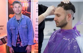 """Vaidas Baumila ryžosi plaukų transplantacijai: """"Kas nori būti plikas – tegul būna"""""""