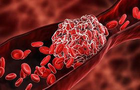 Amerikiečių kardiologas paaiškino, kaip organizmas gali apsisaugoti nuo kraujo krešulių – trombų