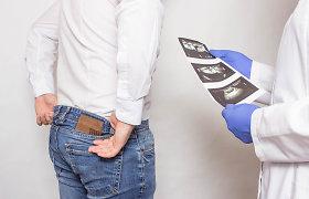 Nuo erekcijos sutrikimų kenčia vis jaunesni vyrai: kalti žalingi įpročiai, fizinio krūvio trūkumas, netinkama mityba
