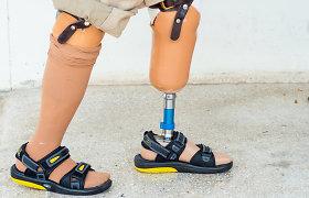 Protezai prieinami ne visiems: jų kompensavimo tvarka apriboja vyresniųjų galimybes