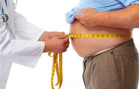 Ar įmanoma numesti 43 kilogramus per 100 dienų? Sporto trenerės ir gydytojos dietologės komentarai