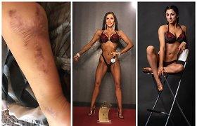 """Fitnese prizines vietas skinanti Evelina: """"Gydytojai norėjo amputuoti koją, sakė, kad liksiu šluba"""""""
