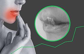 Varginanti lūpų pūslelinė: svarbiausia, ką turite žinoti