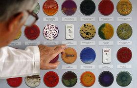 Rado senų mikrobų nuotrauką ir gąsdina, kad tokie gyvena kaukėse