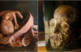 Muziejus Kaune, į kurio eksponatus pažvelgti išdrįs ne visi: tikra tatuiruota kalinio ranka, kūdikis parazitas bei perpjauta galva