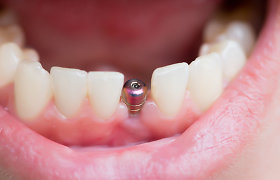 Kiek trunka atkurti prarastus dantis? Dažniausi klausimai apie dantų implantaciją