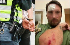 Kelionę paspirtuku baigė ligoninėje: avarijos nebuvo – vilniečio elgesio netoleravo policija