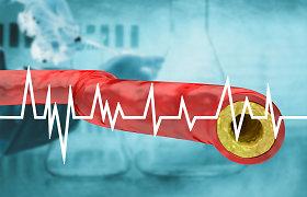 Santaros klinikų gydytoja kardiologė: trombozė yra viena pavojingiausių COVID-19 komplikacijų. Ką daryti?