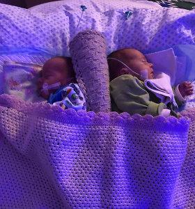 Pirmą kartą Lietuvoje išgydytas dvynių transfuzijos sindromas: išsaugotos broliukų gyvybės