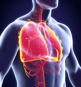 Plaučių vėžys vis dažniau diagnozuojamas nerūkantiems. Galimos priežastys