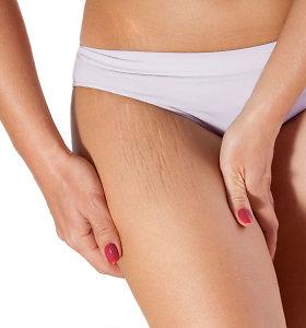 Strijų gali atsirasti ir dėl antsvorio. Kodėl svarbu drėkinti odą?