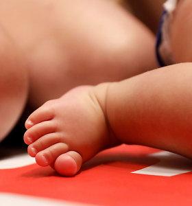 Prancūzija pradėjo tyrimą dėl padažnėjusio kūdikių apsigimimo