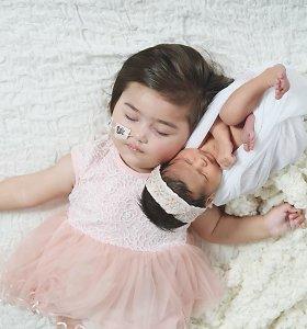 Košmariškas lietuvės gimdymas Jungtinėje Karalystėje: dėl dukters suluošinimo bylinėjasi su ligonine
