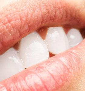 Istoriškai – dantų baliklis, skalbiklis, minkštiklis, bet šiandien – tiesiog šlapimas