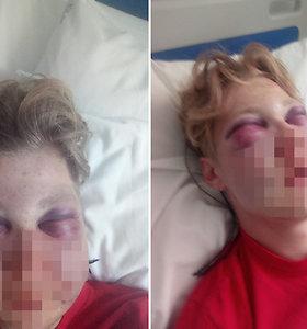 """Palangoje klaikiai sumušto 17-mečio mama: """"Pamatęs nuotraukas pravirko net įtariamojo tėvas"""""""