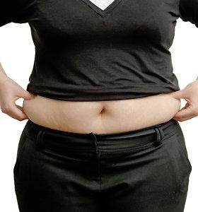 Kai dietos ir sportas nebepadeda: ką derėtų žinoti apie riebalų nusiurbimą?