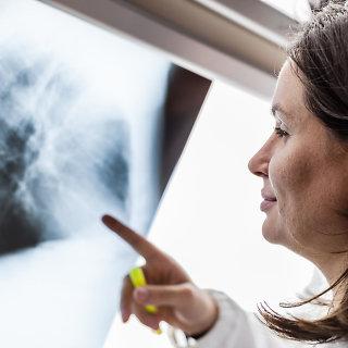 Vėžio diagnostika