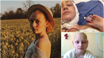 """Kaulų vėžys apsivijo Aušrinės žandikaulį: """"Liga sustiprino mano tikėjimą ir parodė, ką jis gali"""""""