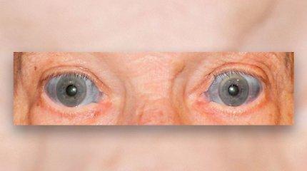 Kodėl pamėlynavo senolio akių baltymai?