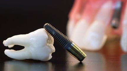 Nauja išmaniųjų dantų implantų technologija pavers juos atsparius bakterijoms