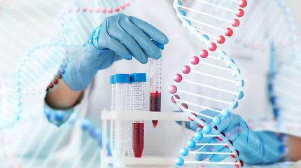 """7 būtini tyrimai, kurie gali atskleisti """"pasislėpusią"""" ligą"""
