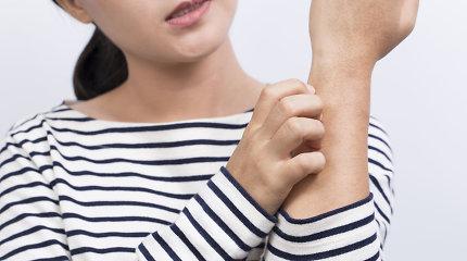 """Gydytoja alergologė: """"Klaidinga manyti, kad rudenį ar žiemą alergijos išnyksta"""""""