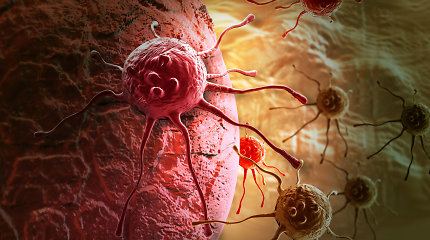 Proveržis vėžio diagnostikoje - prostatos vėžį galima nustatyti iš šlapimo