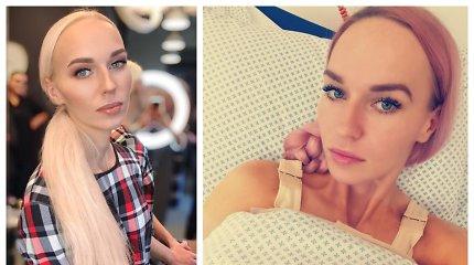 """Birutei Navickaitei atliko krūtinės didinimo operaciją: """"Uždirbu pinigus ir galiu sau tai leisti"""""""