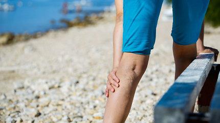 Kojų tinimas ir sunkumas signalizuoja nemalonią ligą: kaip palengvinti varikozės simptomus